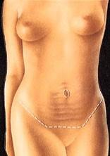 abdom2