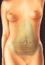 abdom3