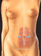 abdom4