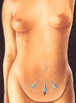 abdom5