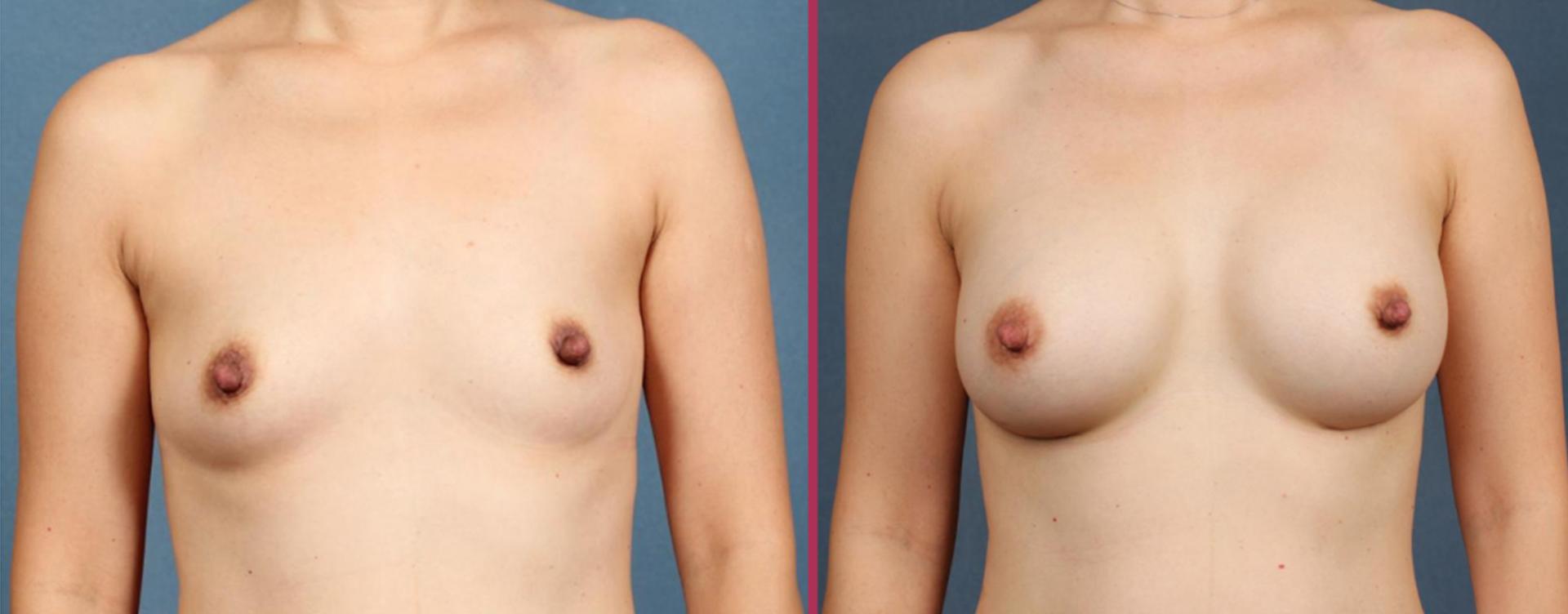 breast augmentation 05