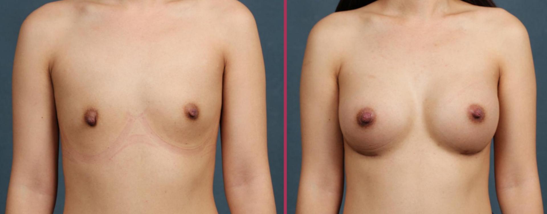 breast augmentation 06