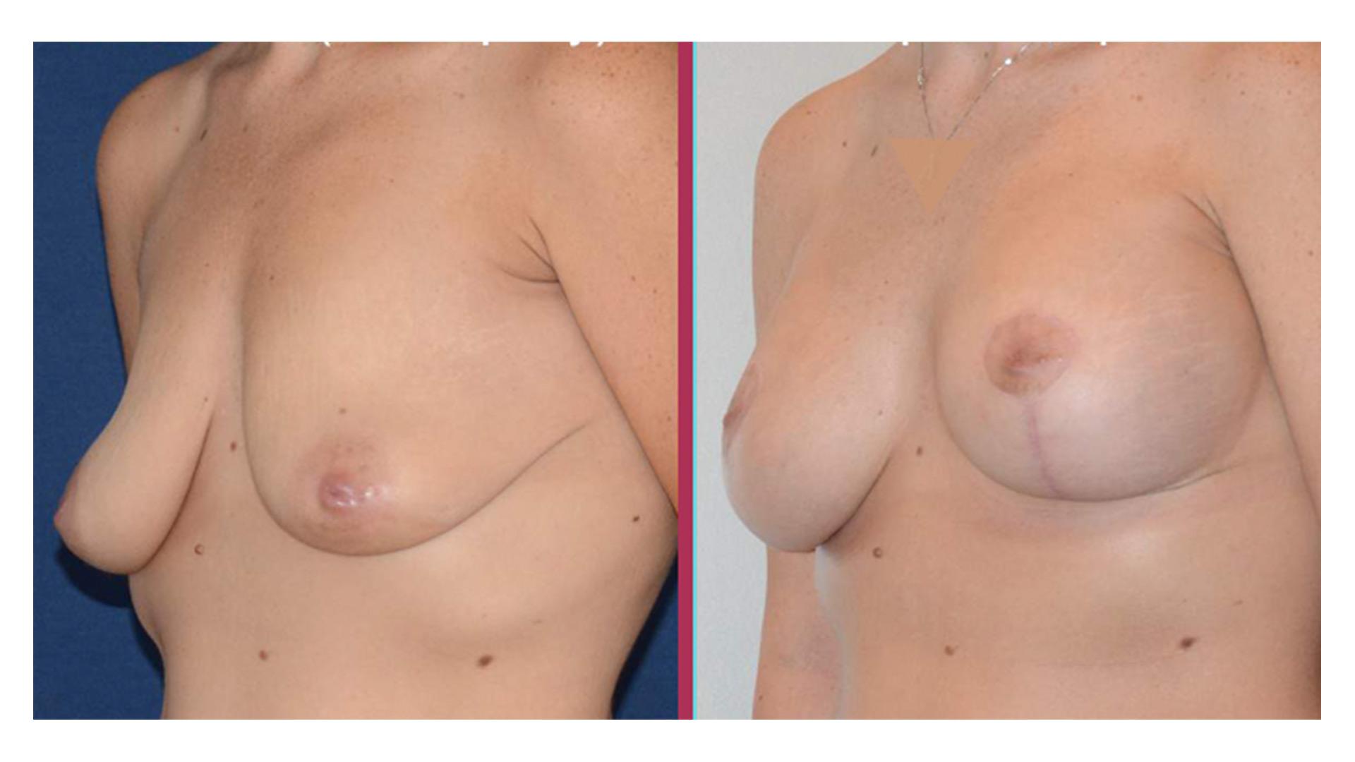 breast lift 01
