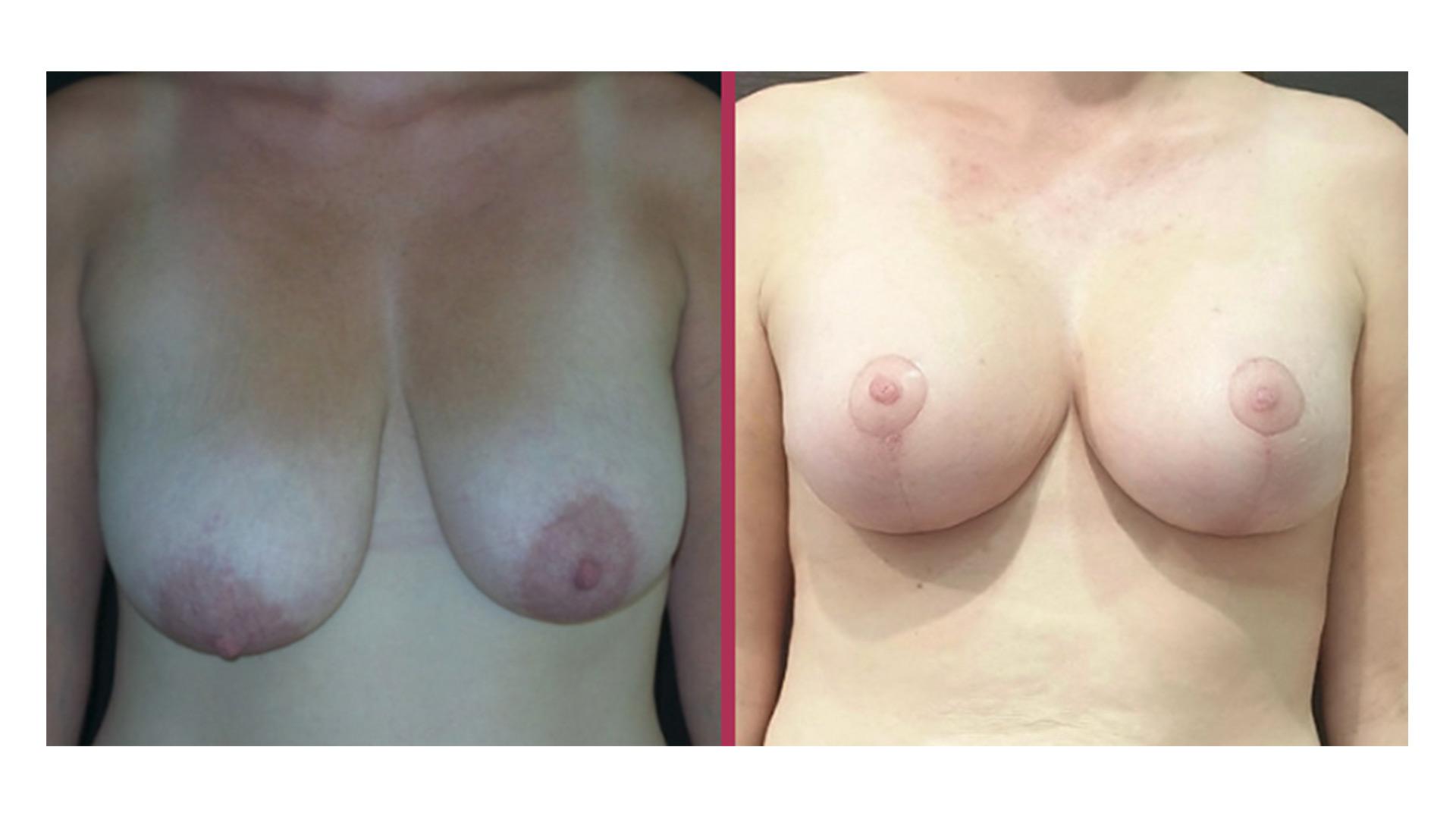breast lift 02