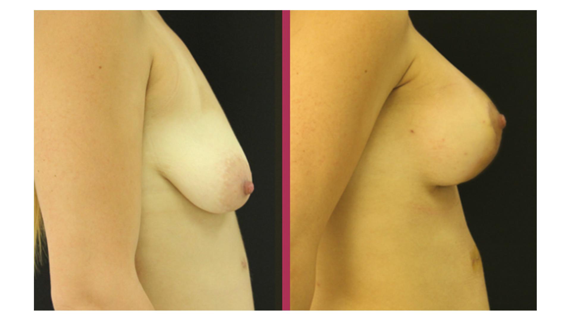 breast lift 03