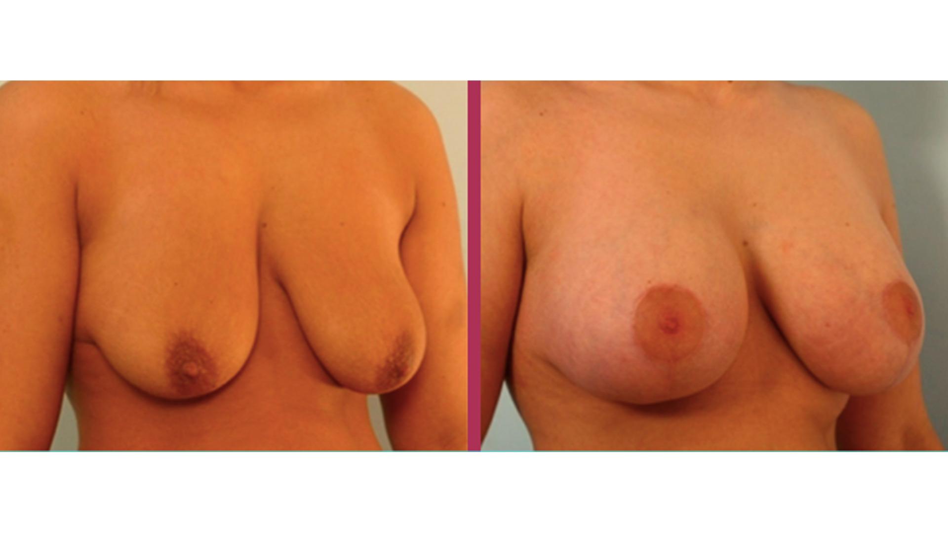breast lift 04