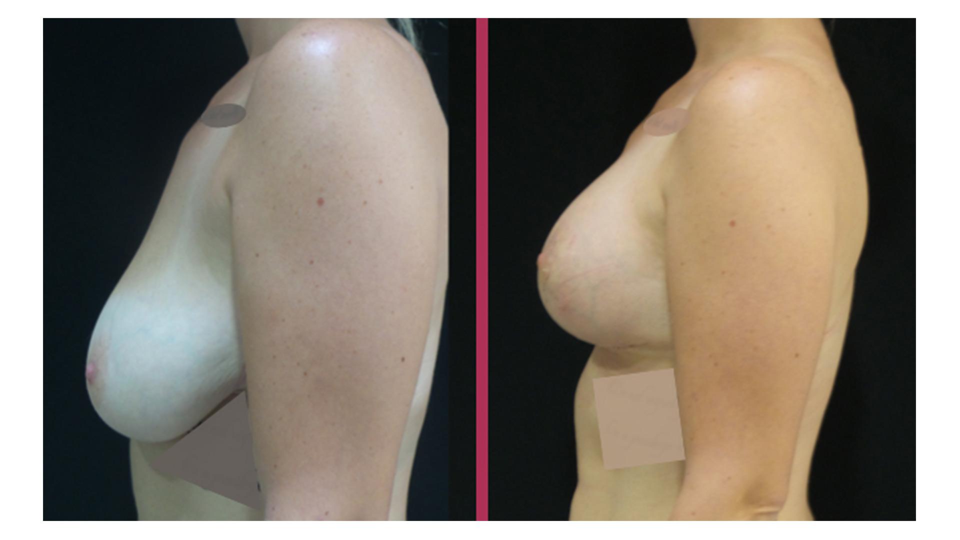breast lift 05