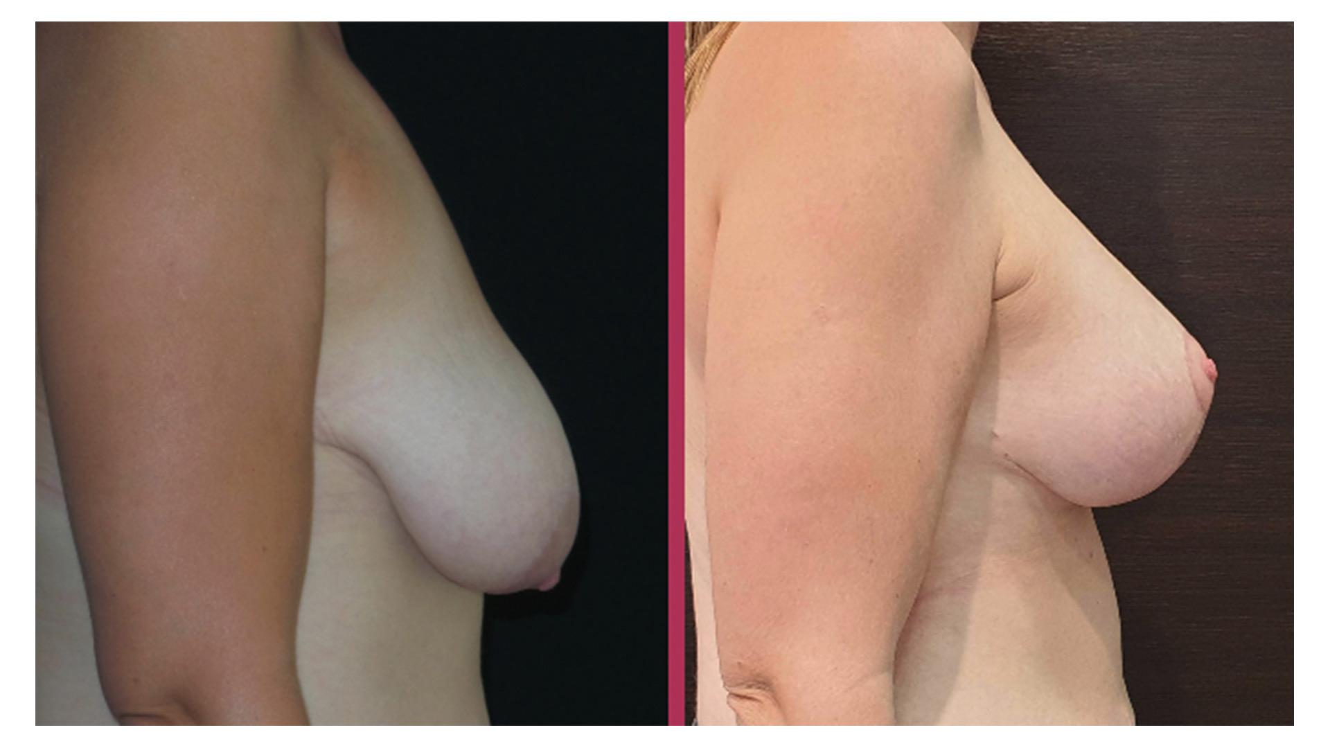 breast lift 06