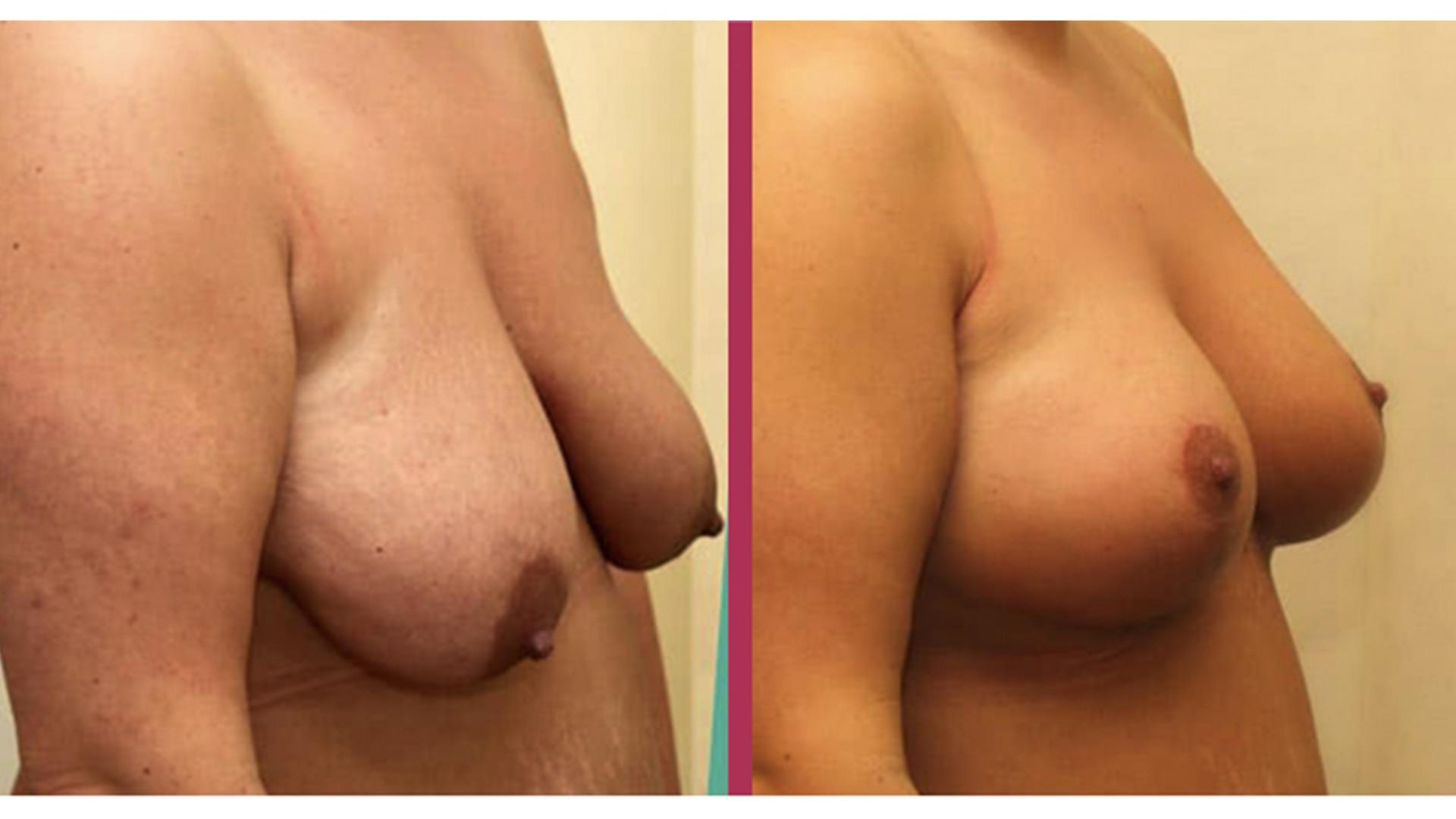 breast lift 07