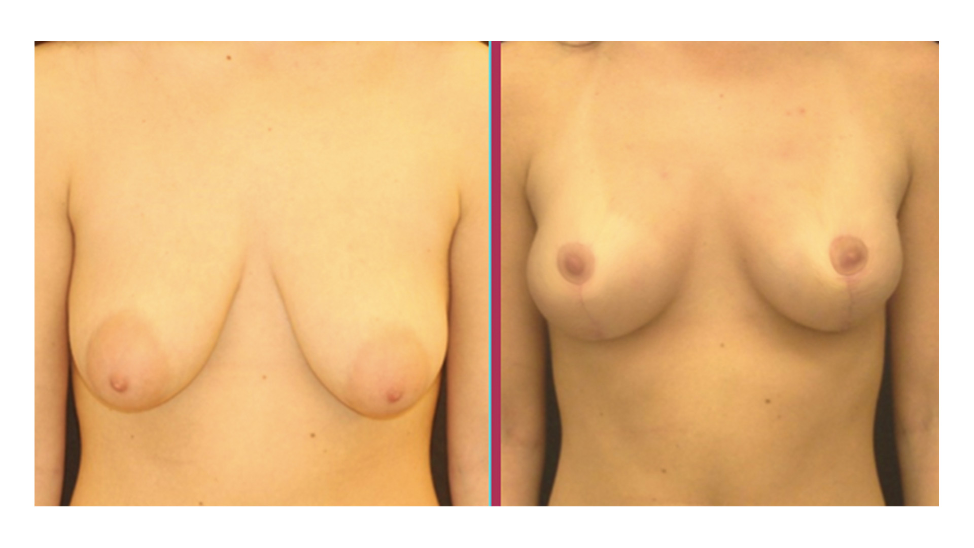 breast lift 08
